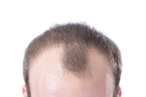 Hair Restoration Services by Robotic Hair Restoration Of Long Island