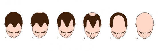 Male Pattern Hair Loss Stages