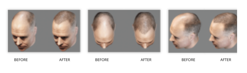 3D Imaging for Hair Restoration using the ARTAS® System