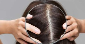 scalp under magnifying glass